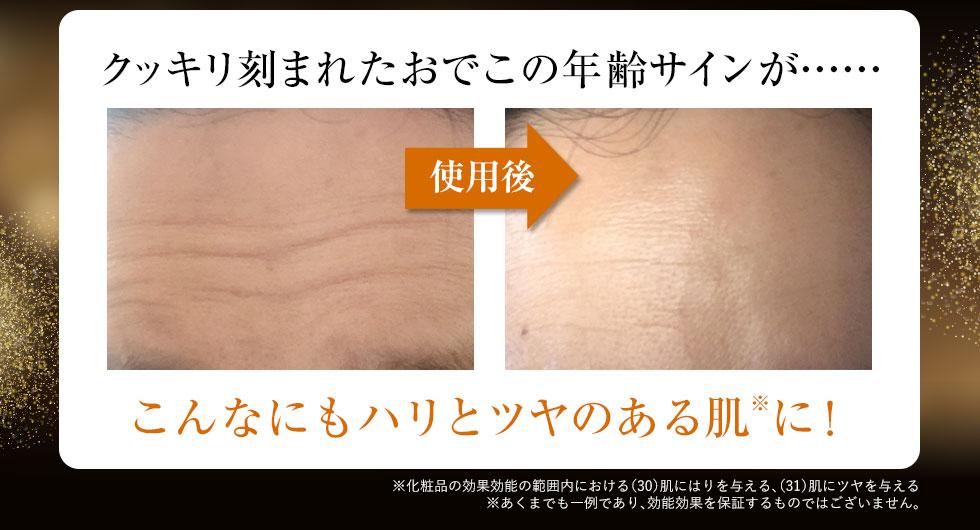 年齢を感じさせる「おでこ」の横線が……こんなにもハリとツヤのある肌※に! ※化粧品の効果効能の範囲内における(30)肌にはりを与える、(31)肌にツヤを与える